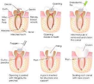 Endodontics | Dr. Park | Hopkinton & Hopedale, MA Dentist