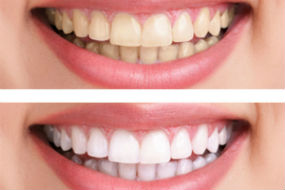 Teeth Whitening | Dr. Park | Hopkinton & Hopedale, MA Dentist