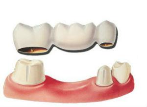 Dental Bridges | Dr. Park | Hopkinton & Hopedale, MA Dentist
