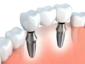 Implants | Dr. Park | Hopkinton & Hopedale, MA Dentist